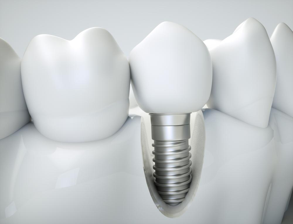 Dental implants Rickmansworth